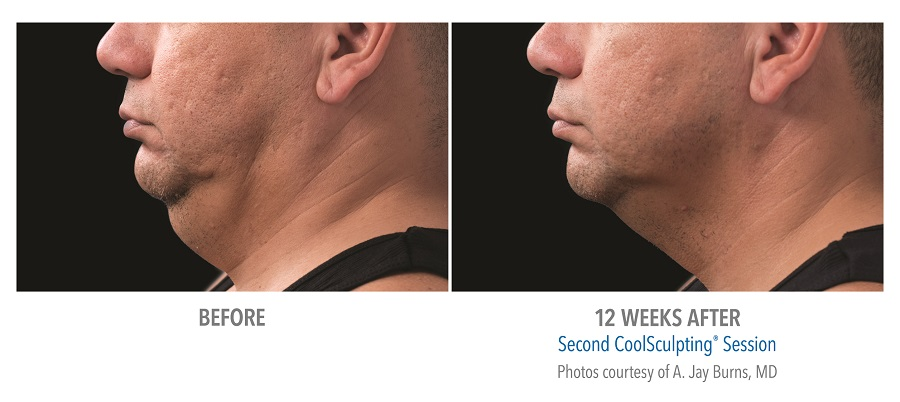 Non-surgical Neck treatment with Coolmini