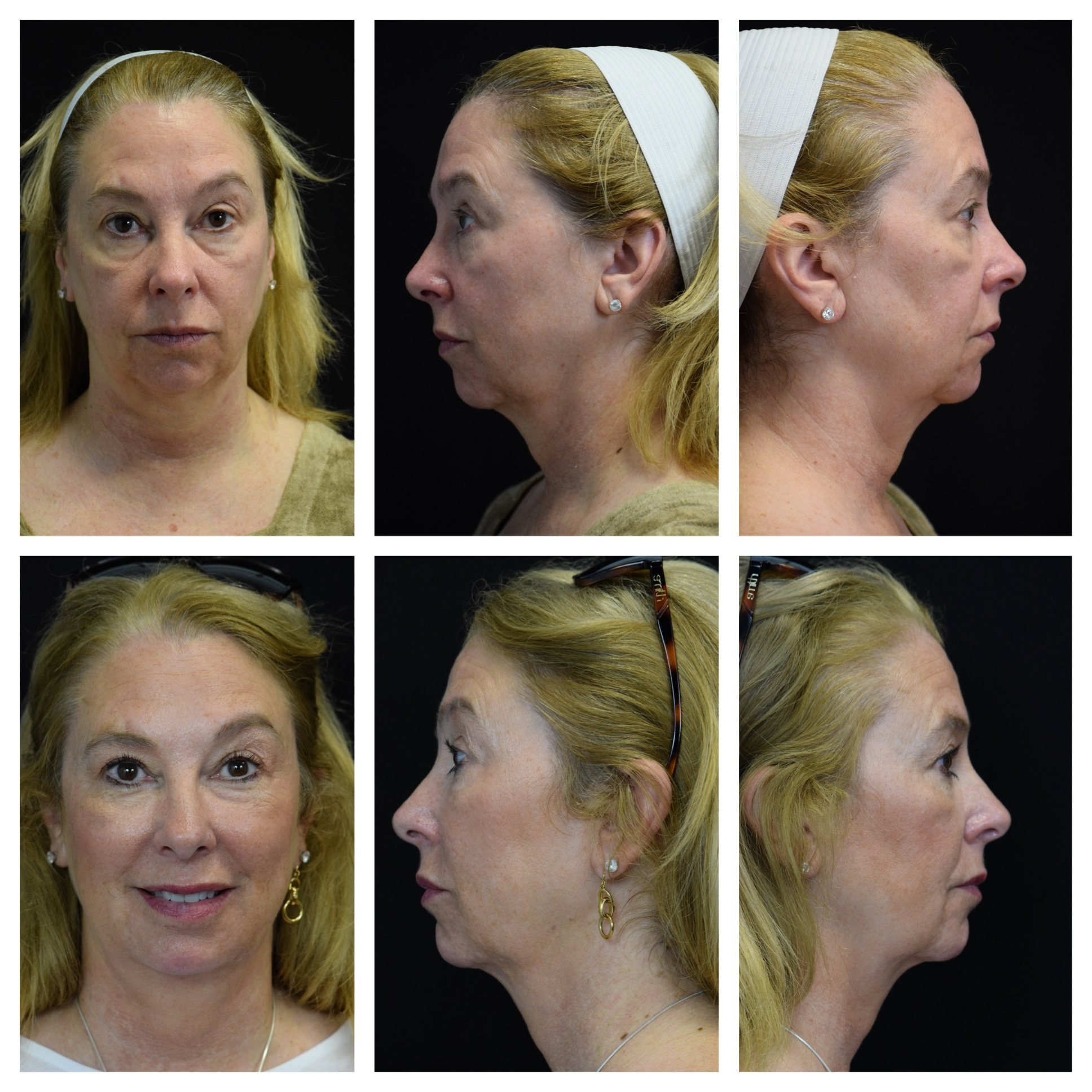 Non surgical skin lift with Ultherapy