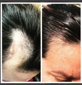 Hair Loss PRP injection with Dr. Shanthala